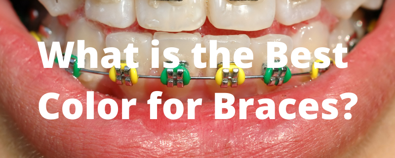 What is the best color for braces
